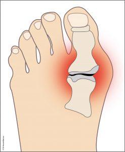 arthrose pied et main