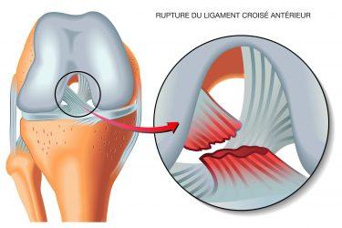 Docteur Hossenbaccus - Genou - ligamentoplastie du ligament croisé antérieur - Rupture du ligament croisé