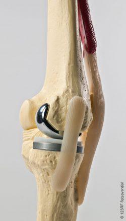 Docteur Hossenbaccus - Genou - Prothèse unicompartimentale du genou